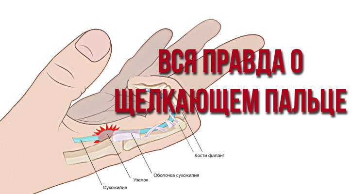 Вся правда о щелкающем пальце
