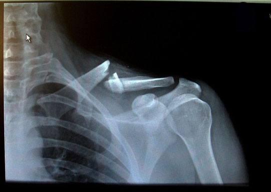 Перелом ключицы на рентгенографии