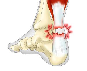 Разрыв пяточного сухожилия является серьезной травмой, которой часто предшествует воспаление