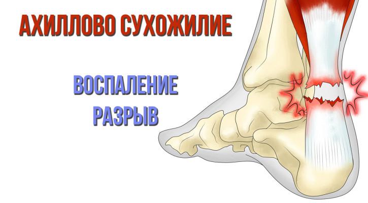 Воспаление и разрыв ахиллова сухожилия