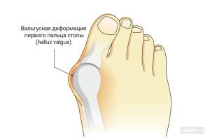 Вальгусная деформация является заболеванием первого плюсне-фалангового сустава стопы