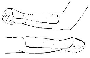 Пример лонгетной повязки