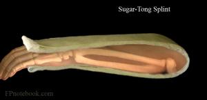 U-образная повязка на предплечье